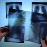 Акция «Вместе против туберкулёза» стартует сегодня в Сенно
